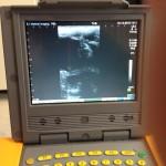 ultrasound-150x150.jpg